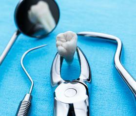 Как лечат зуб под пломбой